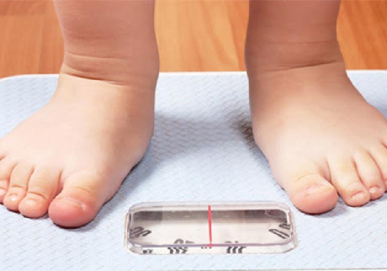 Obesidade e desemprego