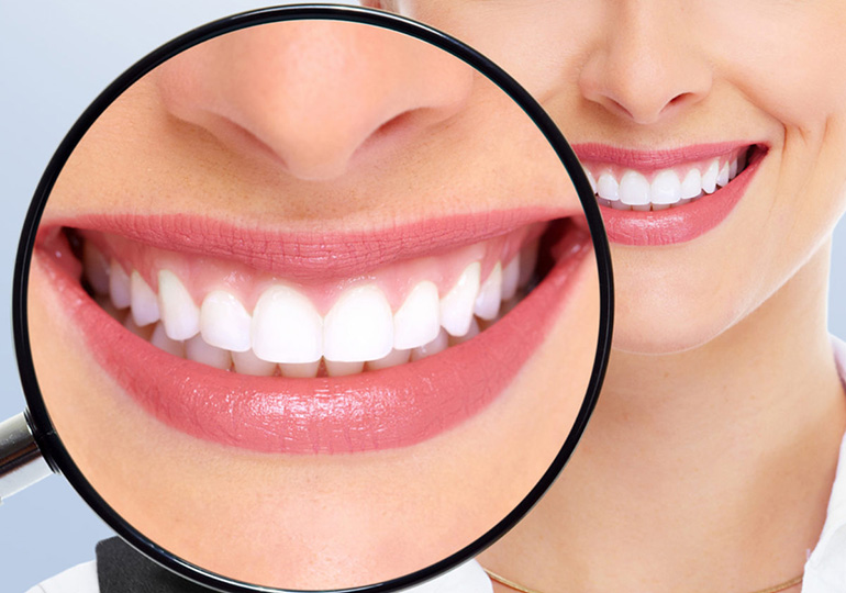 Lente de contato dental antes e depois