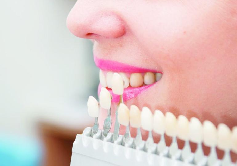 Lente de contato dental antes e depois – E como funcionam?