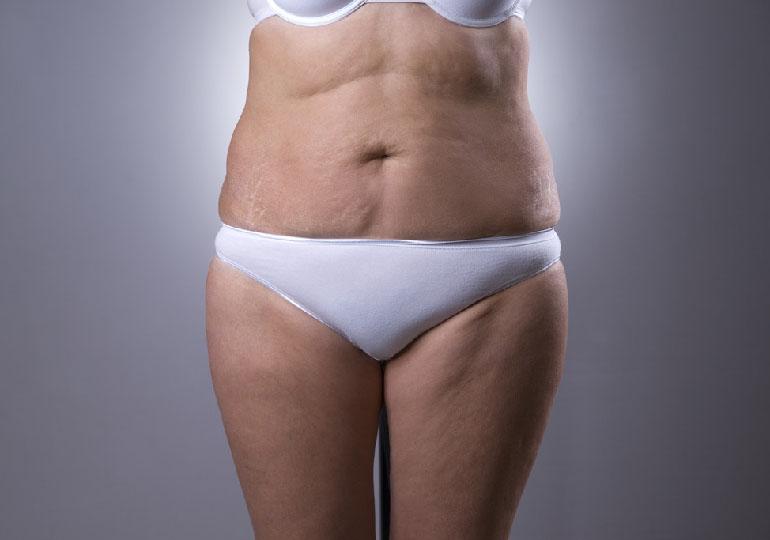 Flacidez corporal: O que fazer para acabar com esse incômodo?
